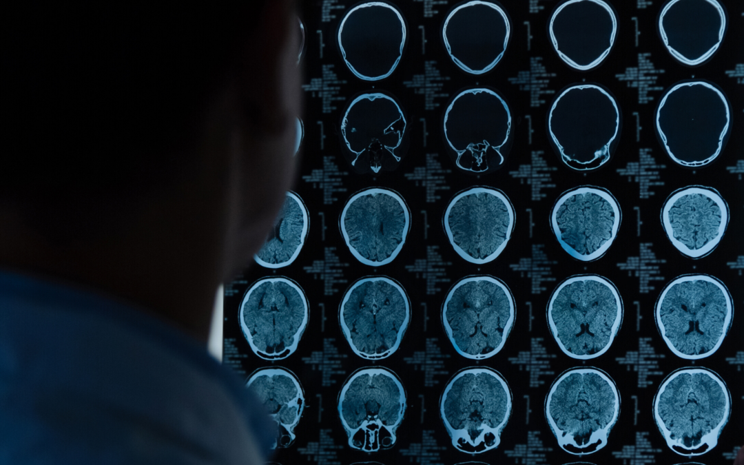 Brain Ultrasound – could this be possible in the future?